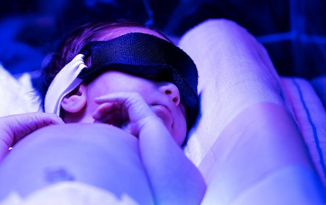 Newborn Jaundice Causes Symptoms And Treatment Apollo Cradle