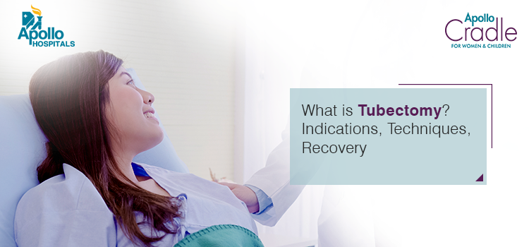 Tubectomy – What is Tubectomy, Indications, Techniques